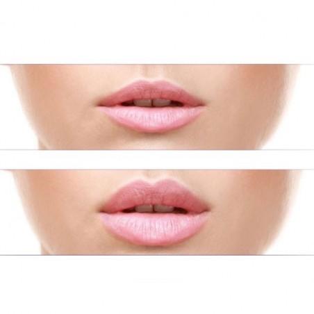 Vlips Tratamiento Voluminizador de Labios
